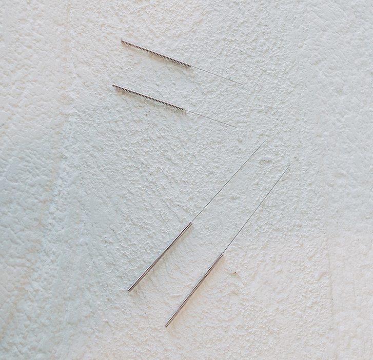 service - Acupuncture